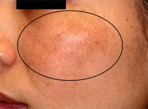 肝斑治療before
