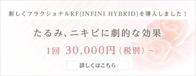 フラクショナルRF(INFINI HYBRID)を導入しました
