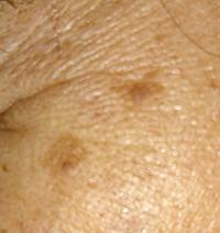 老人性色素斑