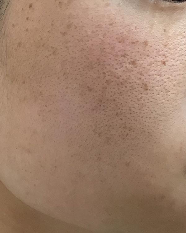 肝斑がない方の雀卵斑の治療 施術前