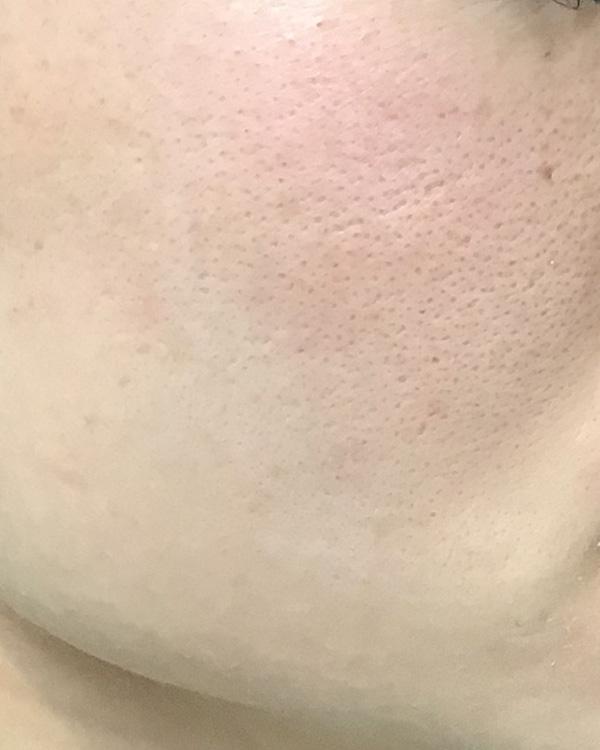 肝斑がない方の雀卵斑の治療 施術後