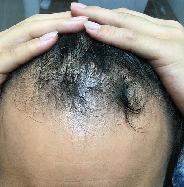 AGA(男性型脱毛)の治療 施術前