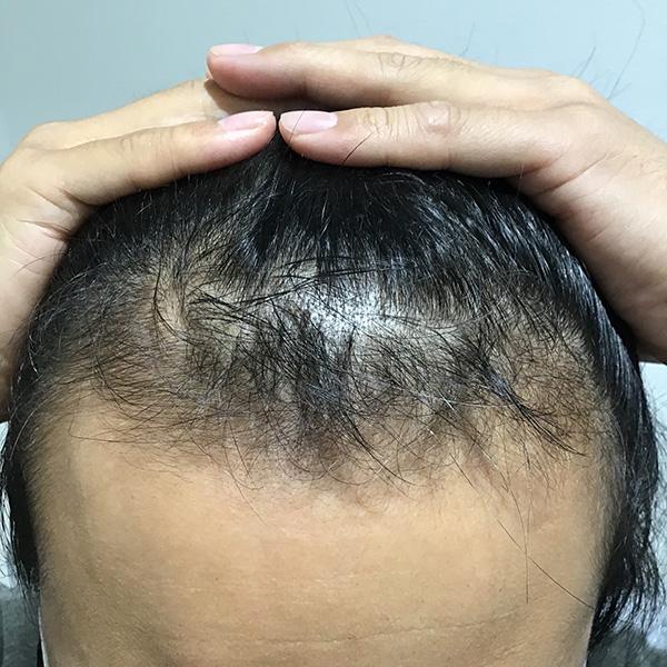 AGA(男性型脱毛)の治療療 施術後