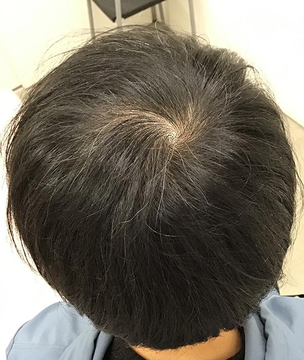 AGA(男性型脱毛)の治療 施術後