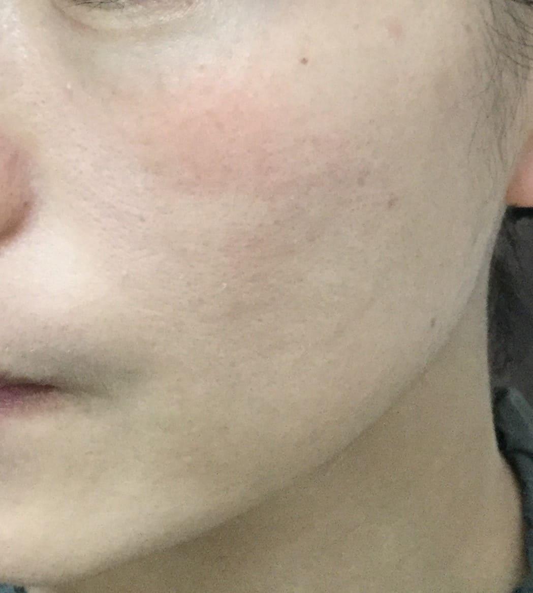 アトピー性皮膚炎 施術後